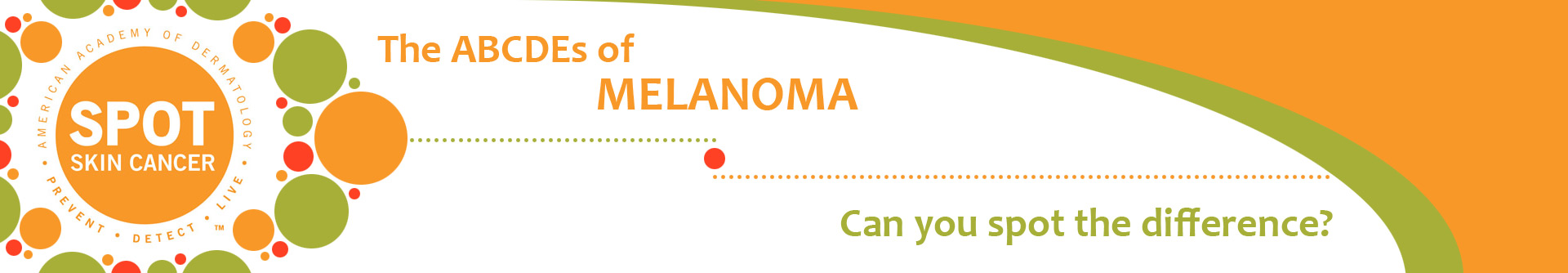 The ABCDEs of Melanoma